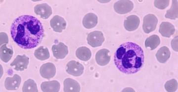 сегментоядерные нейтрофилы
