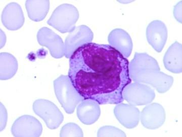 норма моноцитов в крови