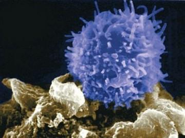 причины повышения лимфоцитов в крови