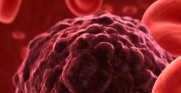 лимфоциты повышены у ребенка в крови