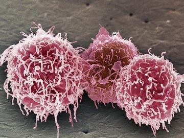 пониженные лимфоциты у детей