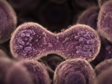 причины увеличения числа лимфоцитов