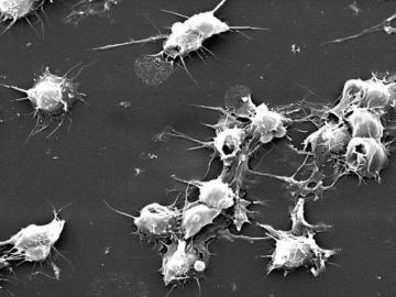 тромбоциты повышены у женщин