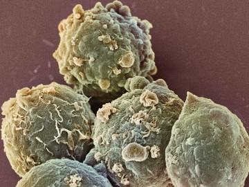 причины повышения тромбоцитов в крови