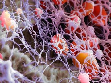 высокий уровень тромбоцитов у женщин
