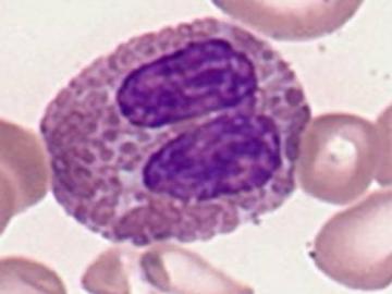 повышенные эозинофилы у детей