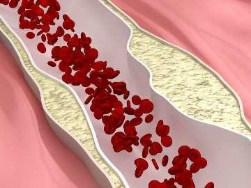 норма холестерина у мужчин