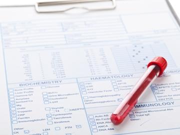 Биохимический анализ крови срб ревматоидный фактор